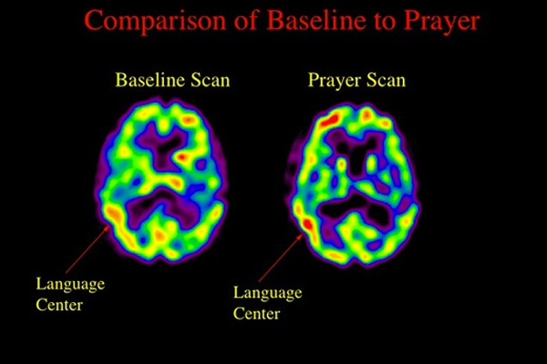 BrainPrayerComparison